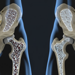 Know the Subtle Signs of Osteoporosis