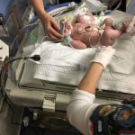 Unresponsive newborn thrives due to on-site neonatal care