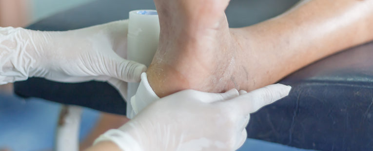 diabetic foot check