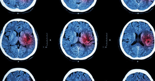 Can COVID-19 cause a stroke?