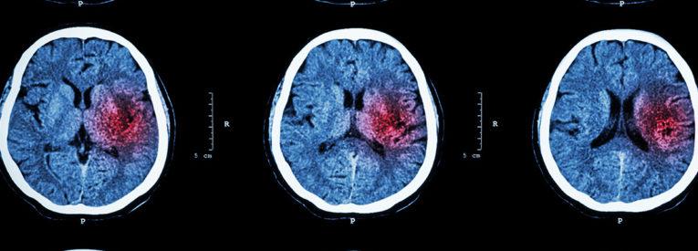 CT scans of a stroke sufferer's brain