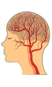 Stroke diagram of the human brain