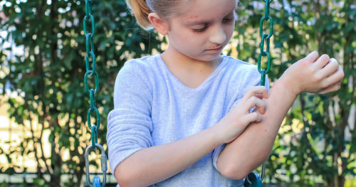 Q&A: Pediatrician shares what parents need to know about hives in kids