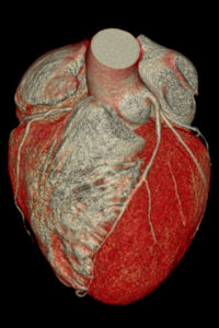 3D image of the coronary artery of the human heart