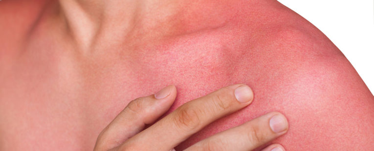 Man with sun rash on chest and arms.