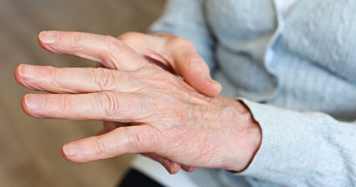 Don't believe common myths about easing arthritis pain