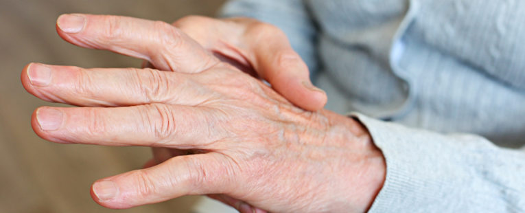 Person holding one hand in the other as though experiencing arthritis pain