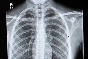 Osf Saint Francis Medical Center >> X-Ray | OSF Saint Francis Medical Center