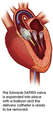 TAVR-placement-in-heart.jpg