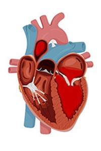 Diagram of a heart mitral valve