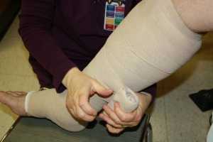 Lymphedema | OSF HealthCare